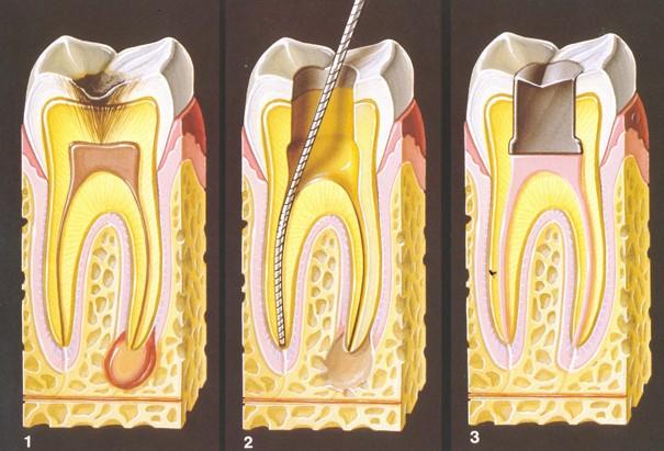 каналы в зубах фото